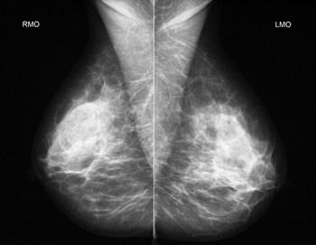mamografia BRASILIA